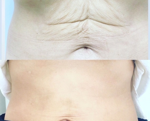 Pdo matrix neck and body